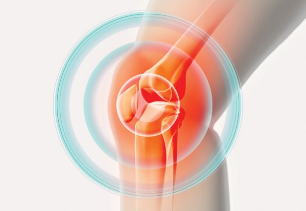 Stem cell therapy: an alternative for osteoarthritis of the knee